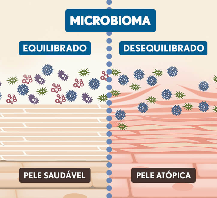 microbioma aveeno